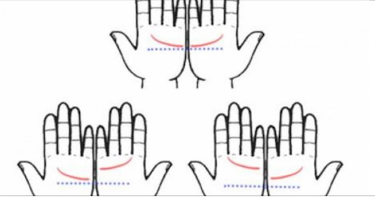 how to tell if you dislocate your pinky finger